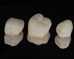 Up-close images of three different, non-metal dental crowns