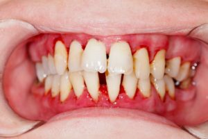 A closeup of a mouth with severe gum disease.