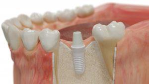 a ceramic dental implant