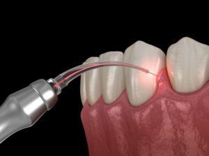 a soft tissue laser