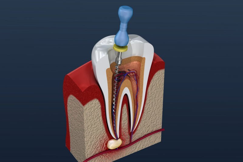 a digital image of a tooth undergoing a root canal in Weyauwega